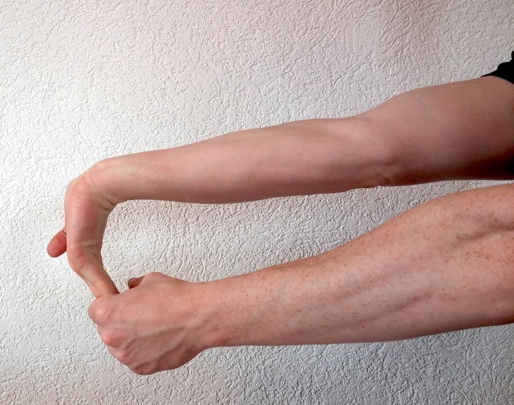 Dehnen bei Handgelenkschmerzen rechter Arm (Bild: Copyright Benjamin Blessing).