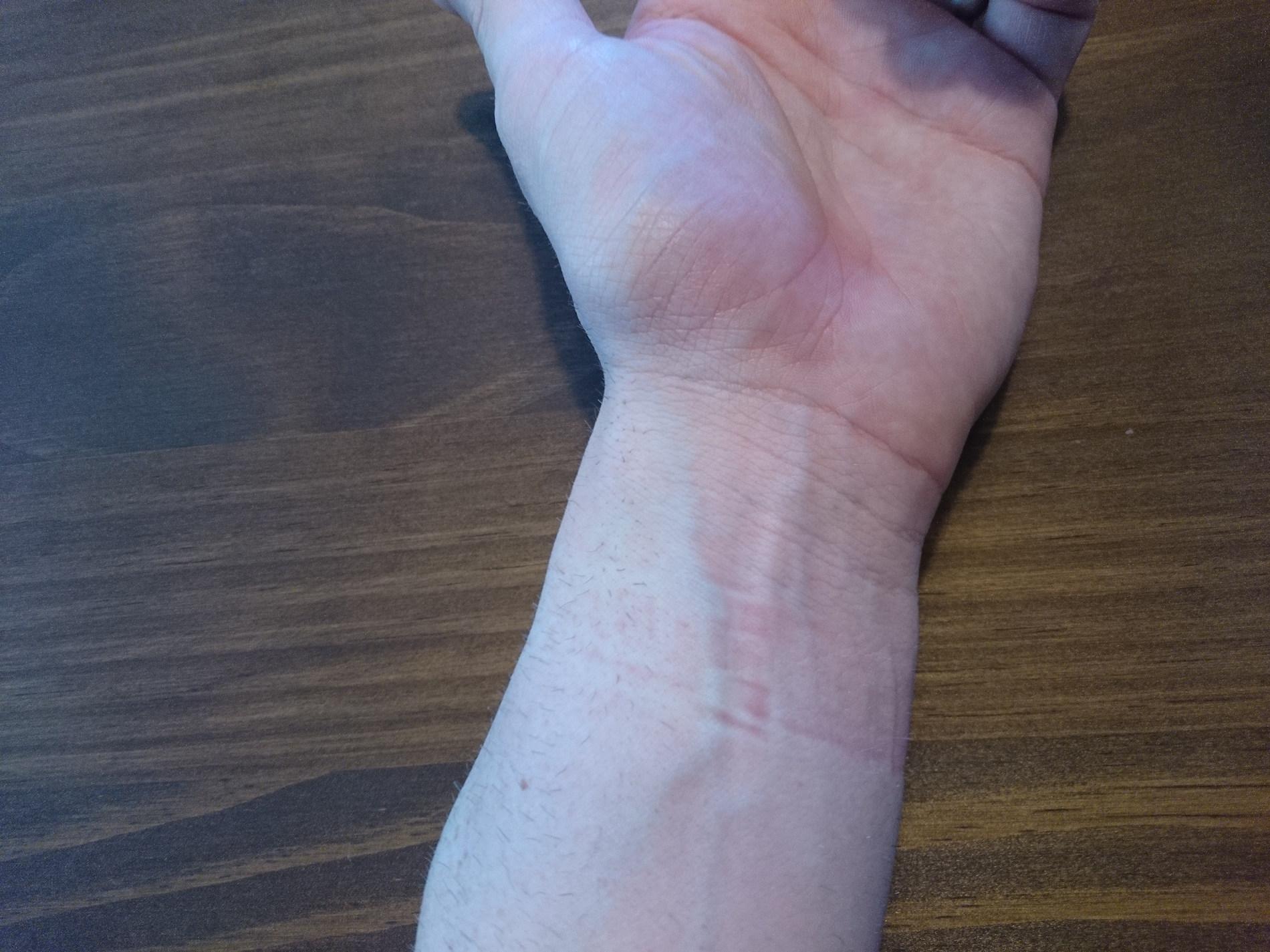 Garmin vivosmart HR Abdruck am Arm