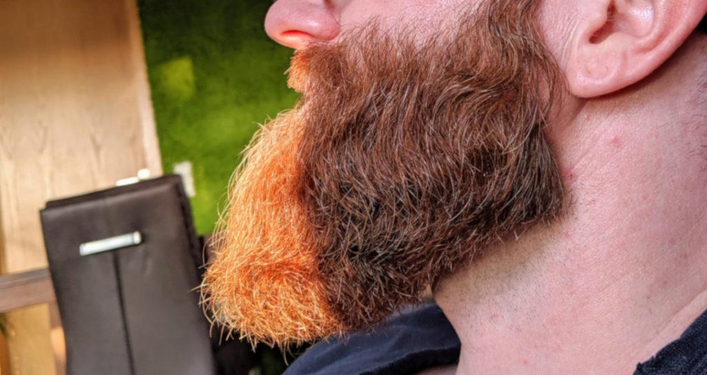 Das hilft gegen Bart Jucken